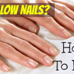 Yellow Nails? Quick Fixes