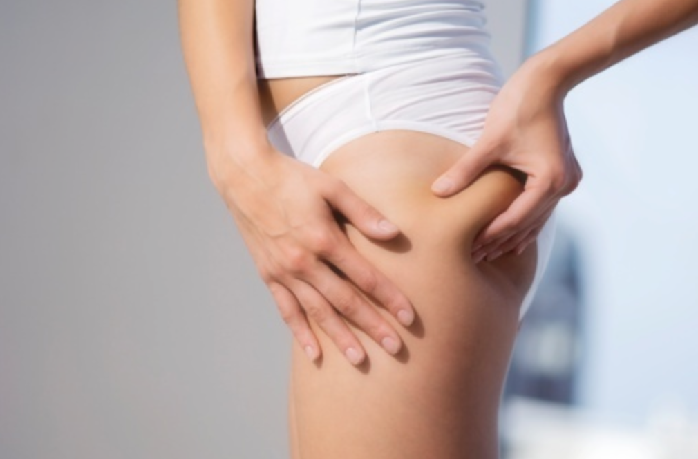 3 Different Home Remedies To Get Rid Of Cellulite Mythirtyspot