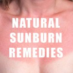 How to Deal With a Sunburn Naturally